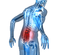 Postural Distortion and Back Pain