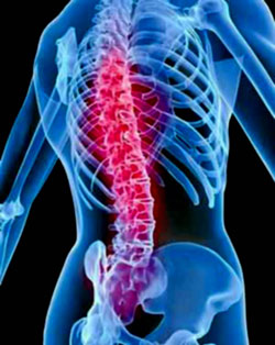New Training Recommendations for Osteoporosis and Spinal Fractures
